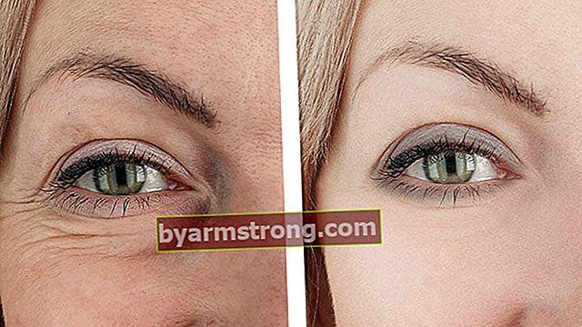 Soluzioni per eliminare le rughe intorno agli occhi