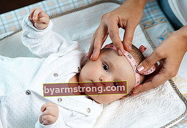 Perhatikan deformitas kepala bayi Anda!