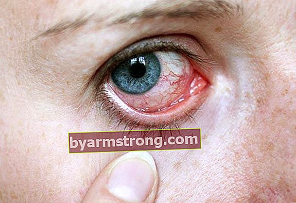 Cosa sono i calcoli oculari? Come viene trattata una pietra per occhi?