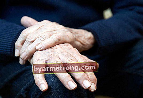 Cosa causa tremori alle mani, come passa? Quali sono le cause e i metodi di trattamento delle strette di mano?