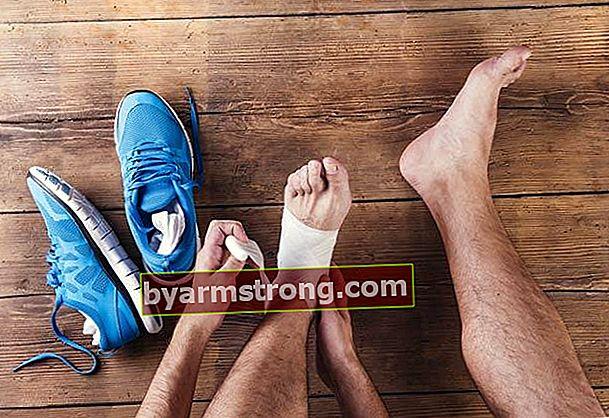 Metodi che andranno bene per la distorsione alla caviglia