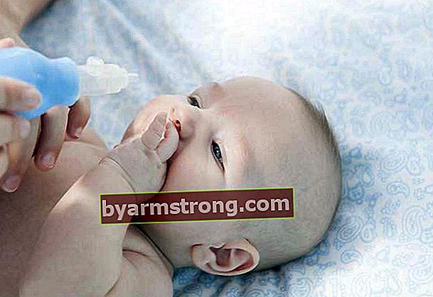 Bagaimana kesesakan hidung berlaku pada bayi?
