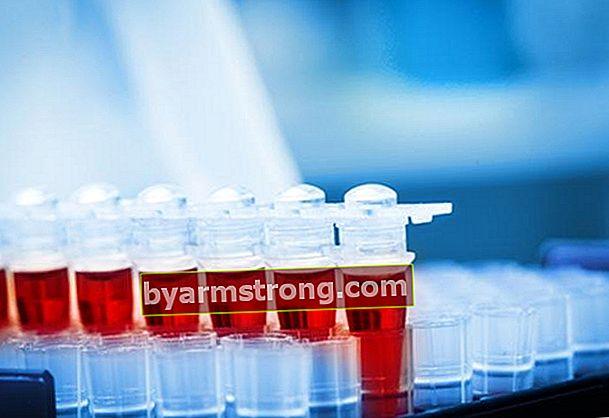 Cosa fare in caso di incompatibilità del sangue?