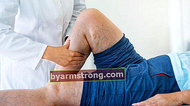 Quale reparto andare per le vene varicose? Quale medico dovrebbe fissare un appuntamento per le vene varicose nelle gambe / nei piedi?