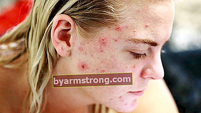 Come passa l'acne cistica?