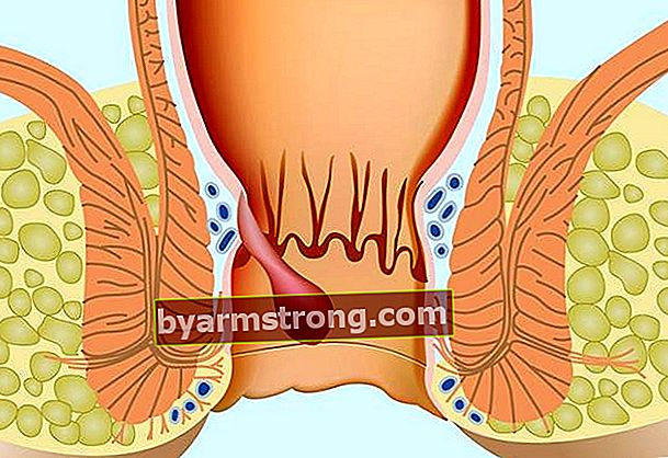 Quali sono i sintomi delle emorroidi? Come vengono trattate le emorroidi?