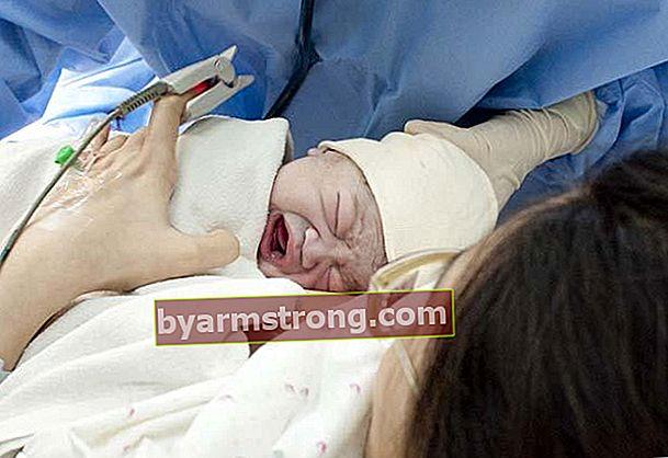 Apa itu anestesia epidural?
