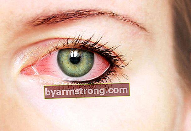 Presta attenzione al rossore e alle sbavature negli occhi