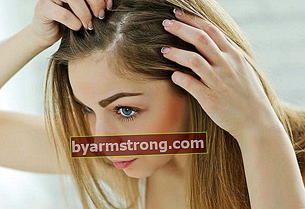 Cause di caduta dei capelli