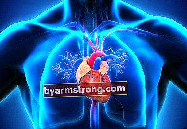 Rottura del vaso aortico