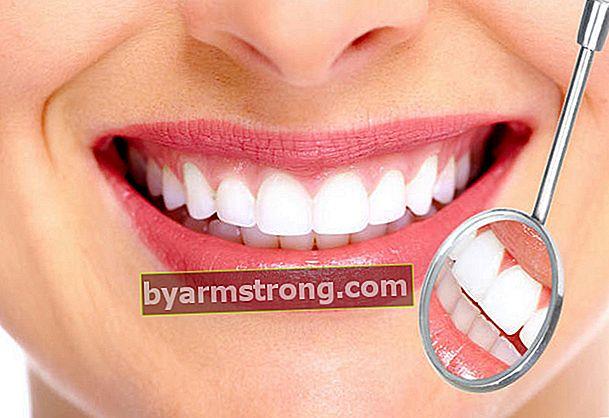 Cos'è un rivestimento dei denti?