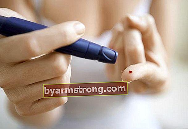 Rawatan diabetes bebas dadah dalam 10 langkah