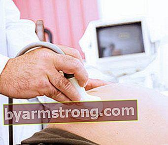 妊娠中は5〜6回の超音波で十分です