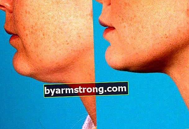Quali sono i modi per sciogliere la guancia?
