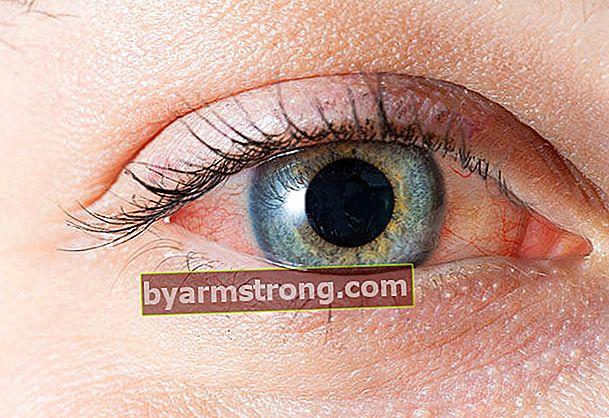 L'arrossamento degli occhi può essere un segno di malattia