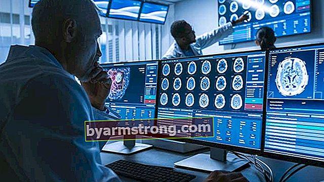 Cos'è la neurologia, cosa guarda? Di quali malattie si occupa il medico del dipartimento di neurologia (neurologo)?
