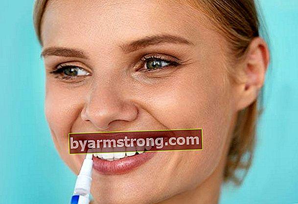 Cos'è una penna per sbiancamento dei denti, a cosa serve?