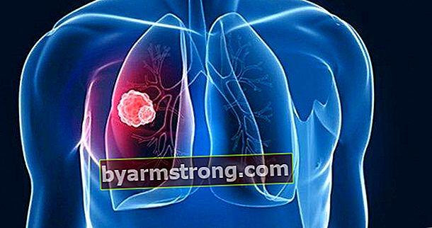 Cos'è la tubercolosi, quali sono i suoi sintomi? La tubercolosi (tubercolosi) è contagiosa?