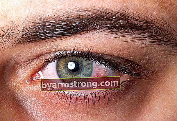 目の出血はどうなりますか?