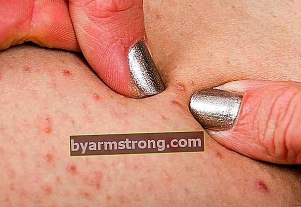 Perché ti viene l'acne sui glutei, come va via? Rimedi per i brufoli sui glutei