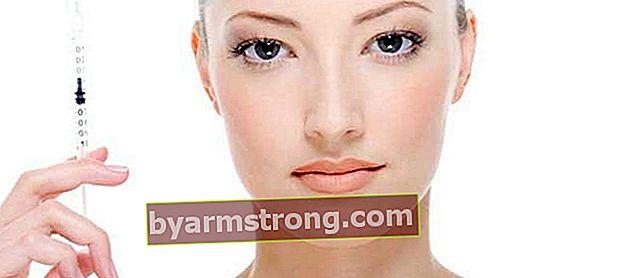 Dovrei avere Botox o un'otturazione?