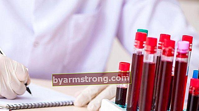 피브리노겐은 무엇입니까? 얼마나 많은 피브리노겐이되어야합니까? 높고 낮은 원인