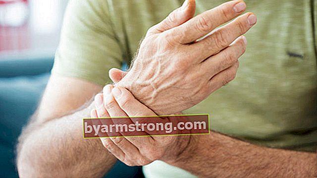 Apa itu reumatologi, apa yang dilihatnya? Penyakit apa yang dilihat oleh doktor jabatan reumatologi (pakar rheumatologi)?