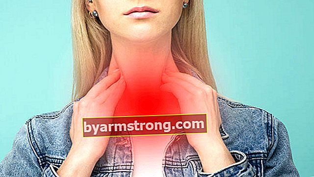 Cosa fa bene all'irritazione alla gola, come va? Metodi a base di erbe per alleviare il prurito e il solletico in gola