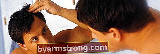 Prevenire la caduta dei capelli!