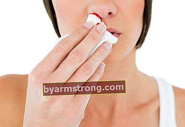Quando il sangue dal naso è pericoloso?