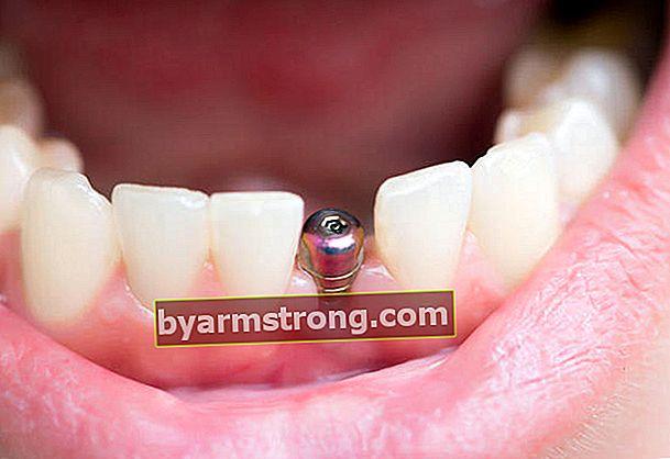 Cos'è un dente implantare?