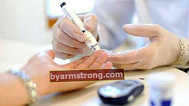 Che cos'è l'emoglobina glicolizzata Hba1C? Hba1C Quanti dovrebbero essere? Cause di alto e basso