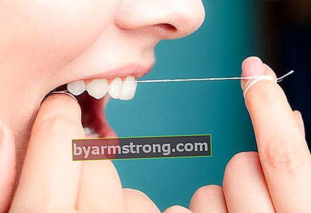 自宅で歯科用タタールをきれいにする方法は?