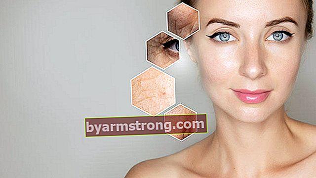 Apa manfaat asam hialuronat bagi kulit?