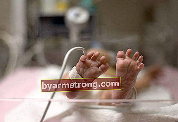 Bayi pramatang mempunyai peluang hidup yang lebih tinggi