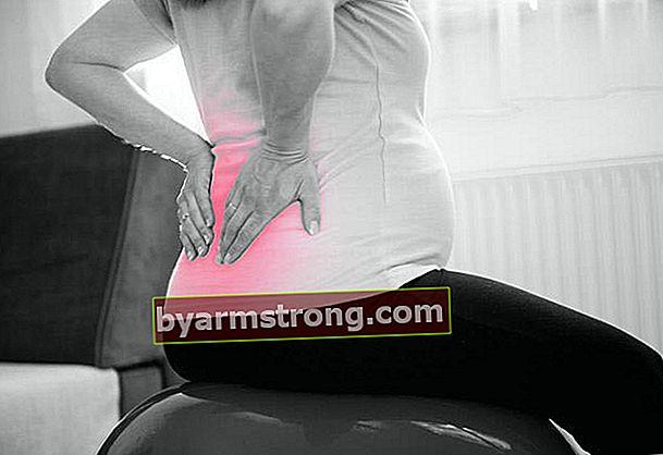 Perhatikan hernia lumbal selama kehamilan!
