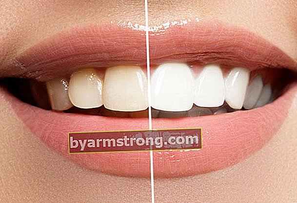 Sbiancamento dei denti con curcuma