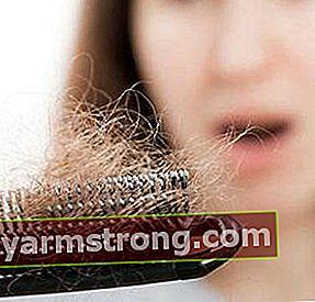 Soluzione per la caduta dei capelli di tipo maschile!