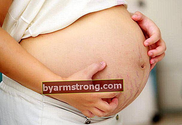 Modi per sbarazzarsi del prurito durante la gravidanza
