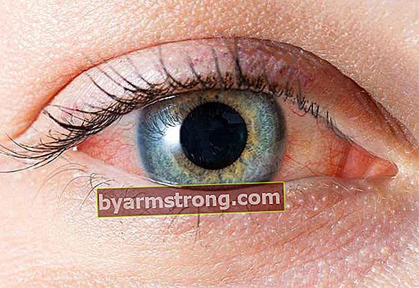 Come viene intesa la pressione oculare? Sintomi della pressione oculare
