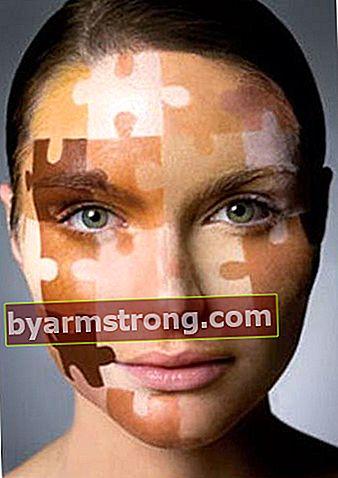 Soluzioni di acne, cicatrici da acne, fossette e macchie