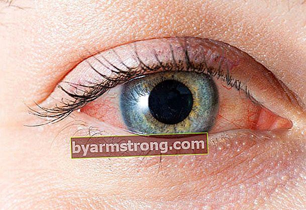 Apa tanda gatal dan kemerahan di mata?