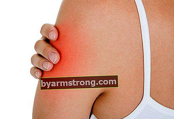 Apa gejala mati rasa lengan?