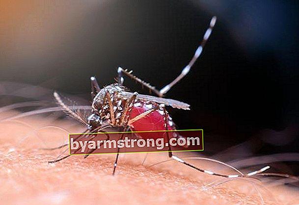 Come passa il prurito delle zanzare?