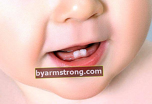 Gejala tumbuh gigi pada bayi