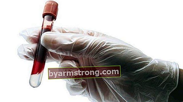 Baso는 무엇입니까? Baso 혈액 가치는 무엇이어야합니까? 높고 낮은 원인