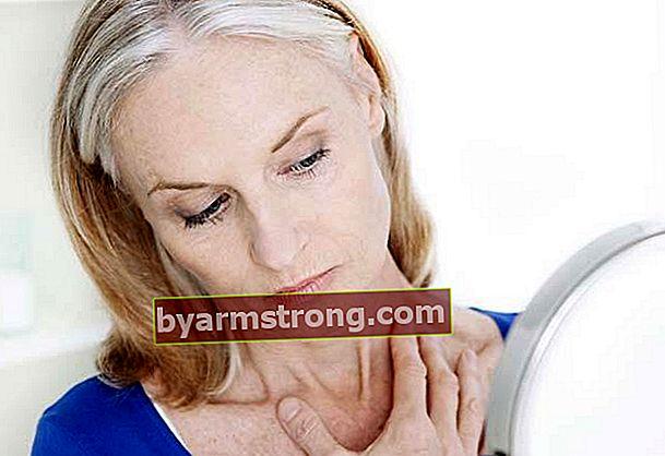 Come posso sbarazzarmi del grasso del collo?