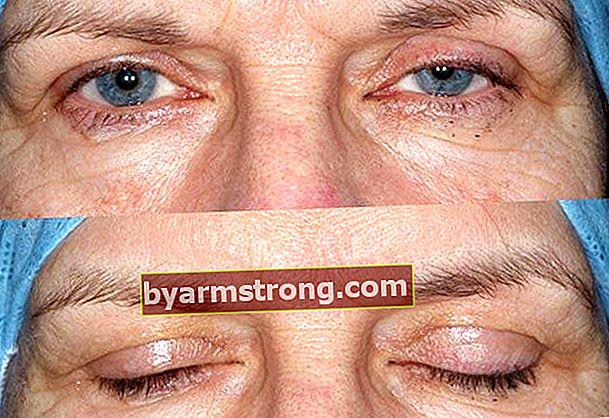 처진 눈꺼풀이 질병의 징후입니까?