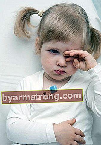 어린이의 수족구 증후군