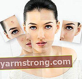 Come possiamo ringiovanire la nostra pelle?